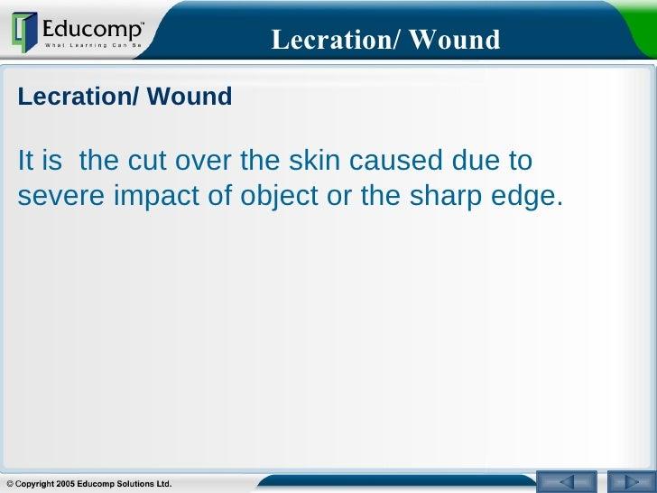 Injury Prevention Resources