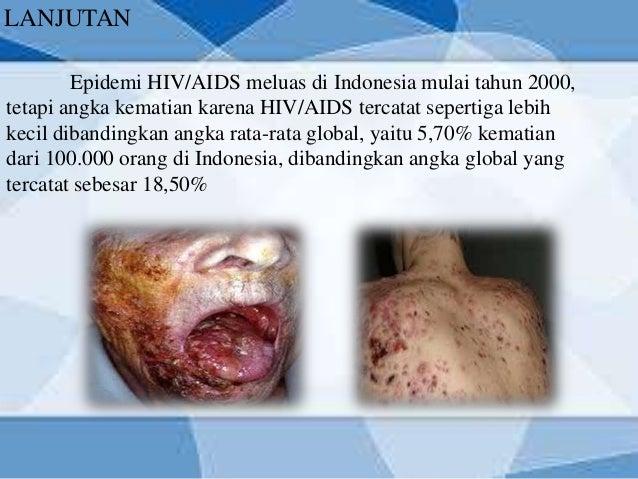 Penyakit hiv di indonesia