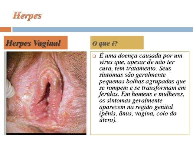 Se vagina pequena e pênis grande