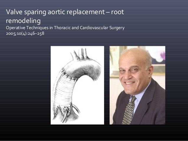 Aortic Valve Sparring Root Replacement David Vs Yacoub