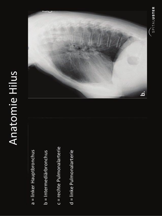 Davos 2013 ws thoraxröntgen