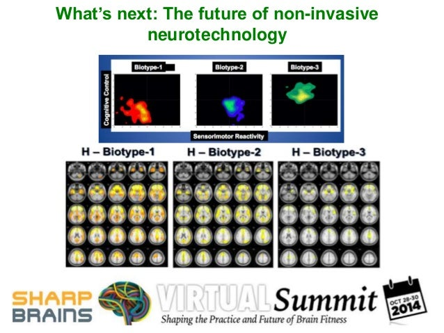 What's next: The future of non-invasive  neurotechnology