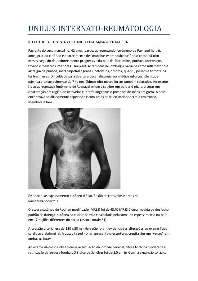 UNILUS-INTERNATO-REUMATOLOGIARELATO DE CASO PARA A ATIVIDADE DO DIA 24/04/2013- 4ª-FEIRAPaciente do sexo masculino, 42 ano...