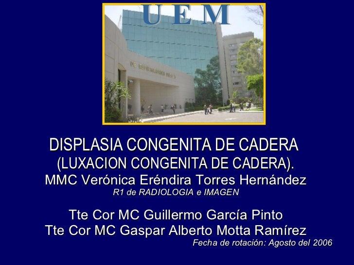 DISPLASIA CONGENITA DE CADERA  (LUXACION CONGENITA DE CADERA). MMC Verónica Eréndira Torres Hernández R1 de RADIOLOGIA e I...