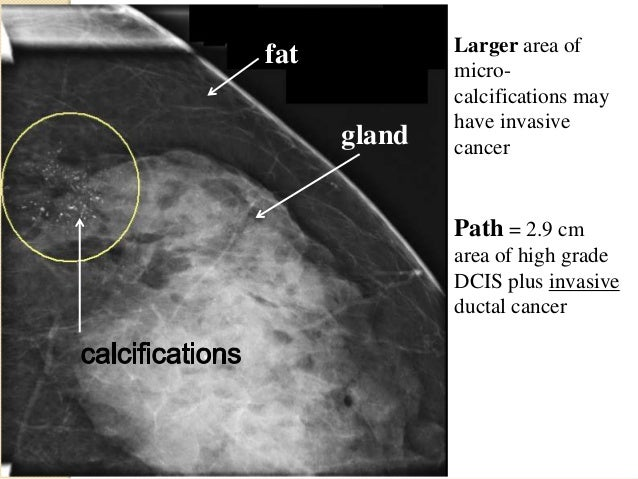 Dcis Breast Cancer