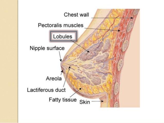 Breast cancer situ