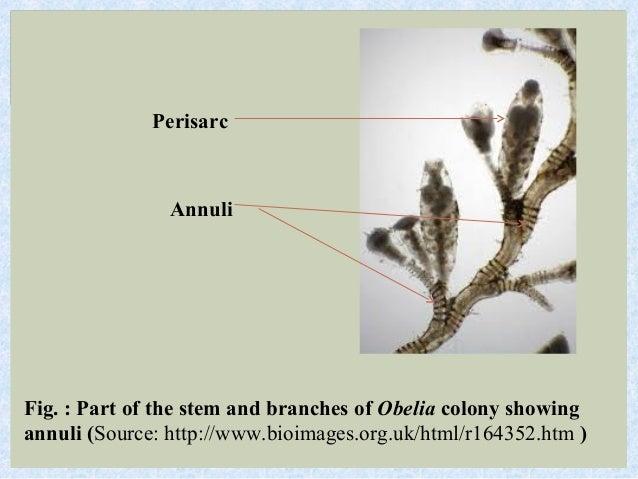 Coelenterates The ObeliaObelia Hydroid Slide