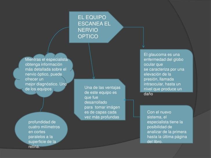 EL EQUIPO                            ESCANEA EL                            NERVIO                            OPTICO       ...