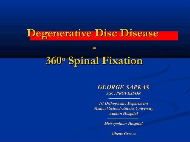 Degenerative Disc DiseaseDegenerative Disc Disease -- 360360οο Spinal FixationSpinal Fixation GEORGE SAPKAS ASC. PROFESSOR...