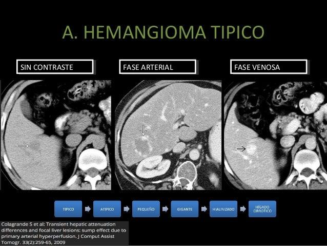 Hemangioma atipico