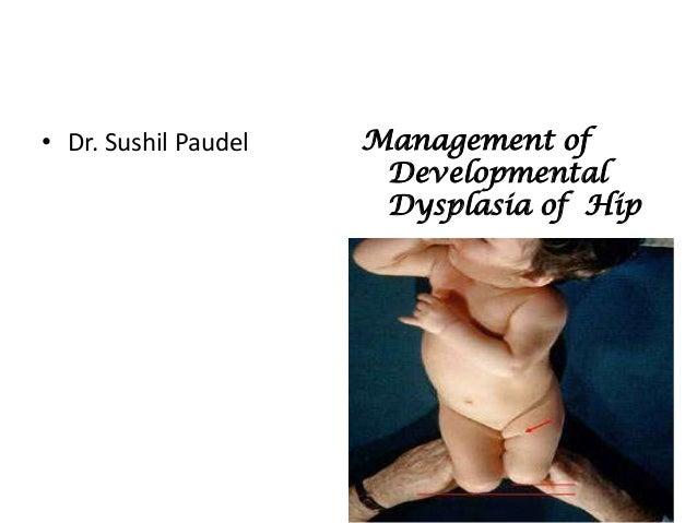 • Dr. Sushil Paudel   Management of                       Developmental                       Dysplasia of Hip
