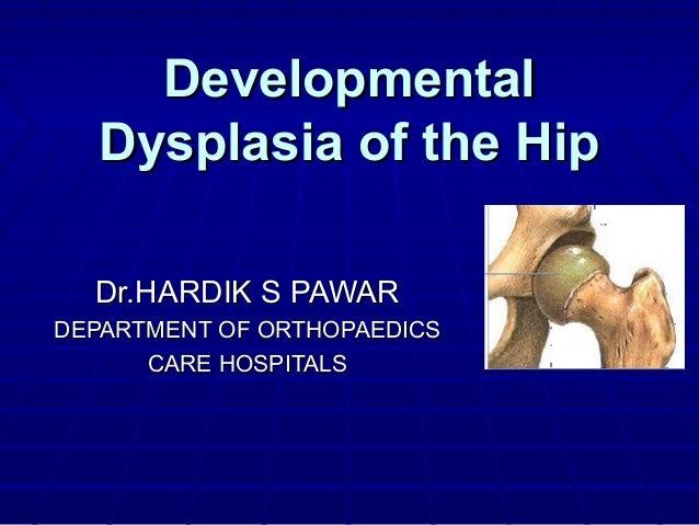 DevelopmentalDevelopmental Dysplasia of the HipDysplasia of the Hip Dr.HARDIK S PAWARDr.HARDIK S PAWAR DEPARTMENT OF ORTHO...