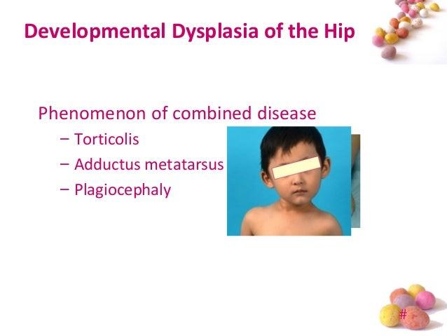 Developmental Dysplasia of Hip (DDH) in Prader-Willi ...