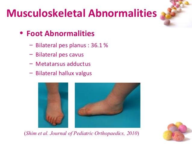 Developmental Dysplasia of Hip (DDH) in Prader-Willi Syndrome (PWS)