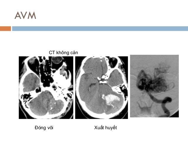 AVM CT không cản quang Đóng vôi Xuất huyết