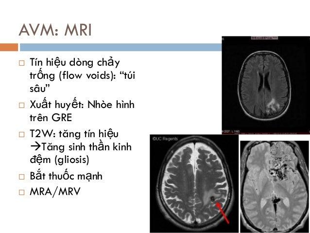"""AVM: MRI  Tín hiệu dòng chảy trống (flow voids): """"túi sâu""""  Xuất huyết: Nhòe hình trên GRE  T2W: tăng tín hiệu Tăng si..."""