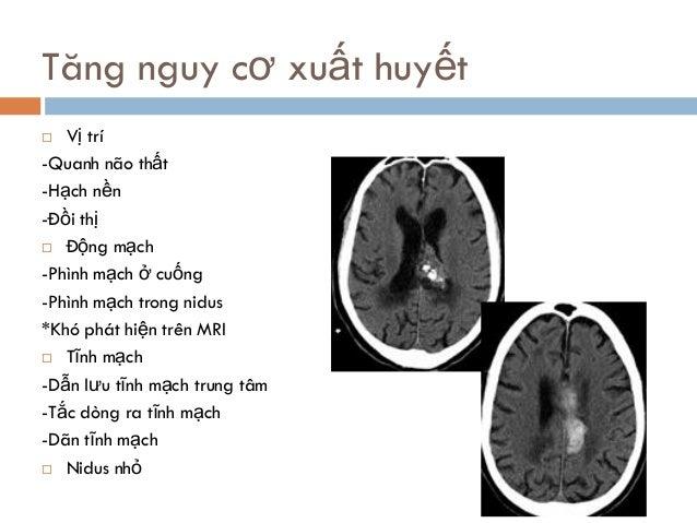 Tăng nguy cơ xuất huyết  Vị trí -Quanh não thất -Hạch nền -Đồi thị  Động mạch -Phình mạch ở cuống -Phình mạch trong nidu...
