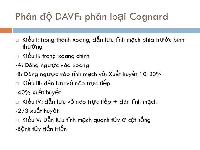 Phân độ DAVF: phân loại Cognard  Kiểu I: trong thành xoang, dẫn lưu tĩnh mạch phía trước bình thường  Kiểu II: trong xoa...