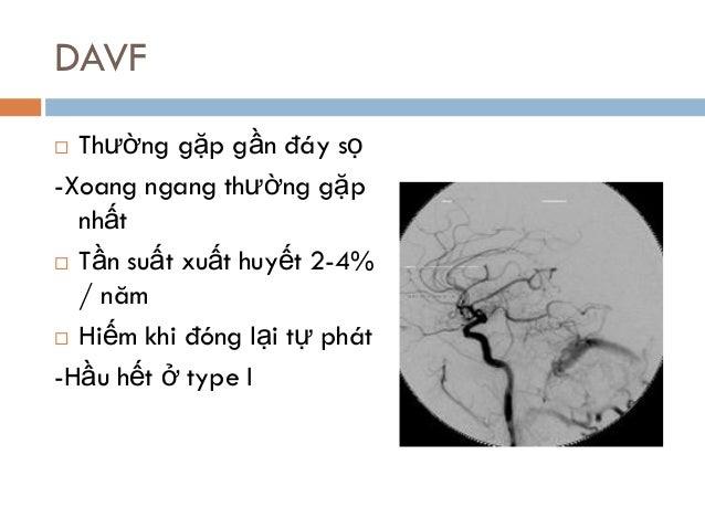 DAVF  Thường gặp gần đáy sọ -Xoang ngang thường gặp nhất  Tần suất xuất huyết 2-4% / năm  Hiếm khi đóng lại tự phát -Hầ...