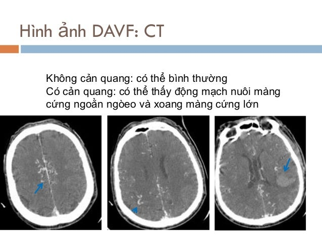 Hình ảnh DAVF: CT Không cản quang: có thể bình thường Có cản quang: có thể thấy động mạch nuôi màng cứng ngoằn ngòeo và xo...
