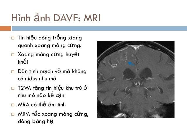 Hình ảnh DAVF: MRI  Tín hiệu dòng trống xiang quanh xoang màng cứng.  Xoang màng cứng huyết khối  Dãn tĩnh mạch vỏ mà k...