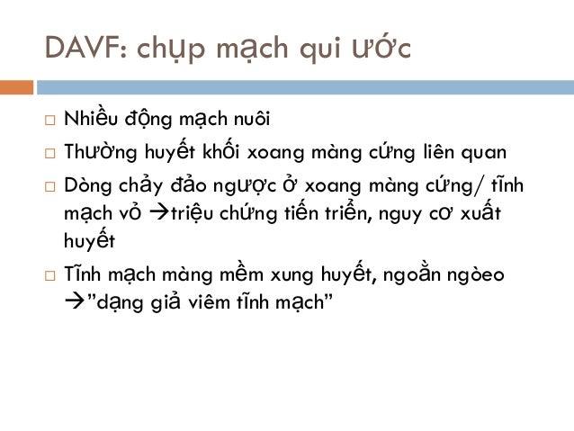 DAVF: chụp mạch qui ước  Nhiều động mạch nuôi  Thường huyết khối xoang màng cứng liên quan  Dòng chảy đảo ngược ở xoang...