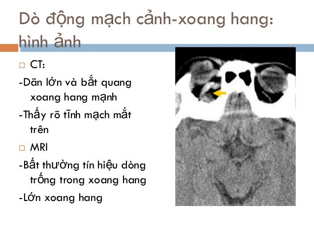 Dò động mạch cảnh-xoang hang: hình ảnh  CT: -Dãn lớn và bắt quang xoang hang mạnh -Thấy rõ tĩnh mạch mắt trên  MRI -Bất ...