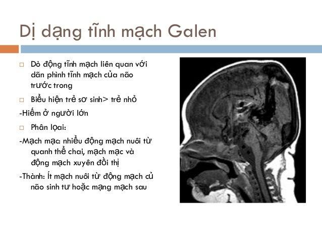 Dị dạng tĩnh mạch Galen  Dò động tĩnh mạch liên quan với dãn phình tĩnh mạch của não trước trong  Biểu hiện trẻ sơ sinh>...