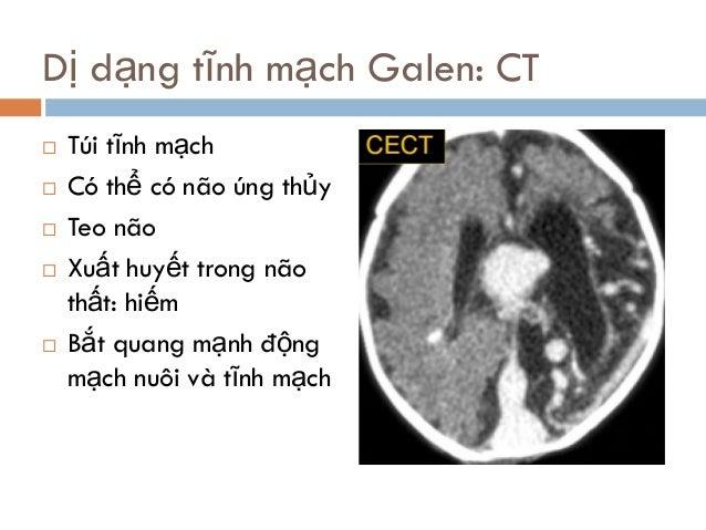  Túi tĩnh mạch  Có thể có não úng thủy  Teo não  Xuất huyết trong não thất: hiếm  Bắt quang mạnh động mạch nuôi và tĩ...