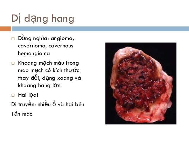 Dị dạng hang  Đồng nghĩa: angioma, cavernoma, cavernous hemangioma  Khoang mạch máu trong mao mạch có kích thước thay đổ...