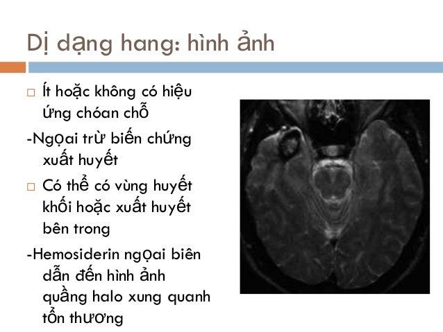 Dị dạng hang: hình ảnh  Ít hoặc không có hiệu ứng chóan chỗ -Ngọai trừ biến chứng xuất huyết  Có thể có vùng huyết khối ...