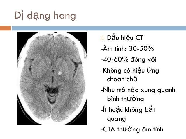 Dị dạng hang  Dấu hiệu CT -Âm tính: 30-50% -40-60% đóng vôi -Không có hiệu ứng chóan chỗ -Nhu mô não xung quanh bình thườ...