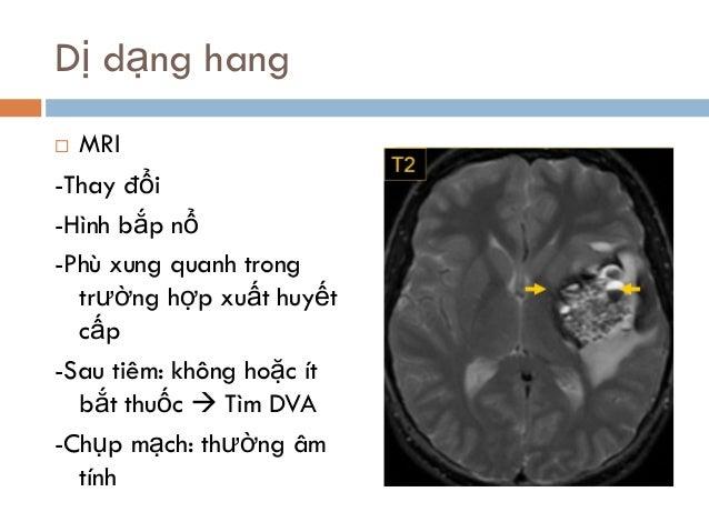 Dị dạng hang  MRI -Thay đổi -Hình bắp nổ -Phù xung quanh trong trường hợp xuất huyết cấp -Sau tiêm: không hoặc ít bắt thu...