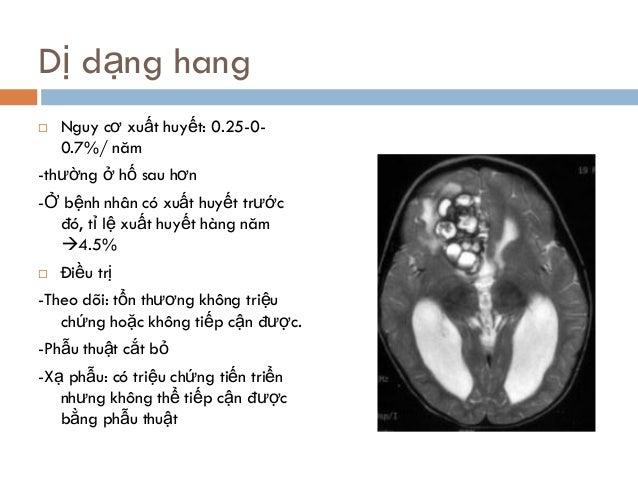 Dị dạng hang  Nguy cơ xuất huyết: 0.25-0- 0.7%/ năm -thường ở hố sau hơn -Ở bệnh nhân có xuất huyết trước đó, tỉ lệ xuất ...