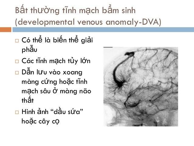 Bất thường tĩnh mạch bẩm sinh (developmental venous anomaly-DVA)  Có thể là biến thể giải phẫu  Các tĩnh mạch tủy lớn  ...