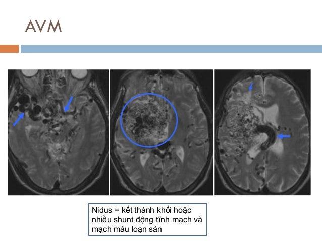 AVM Nidus = kết thành khối hoặc nhiều shunt động-tĩnh mạch và mạch máu loạn sản