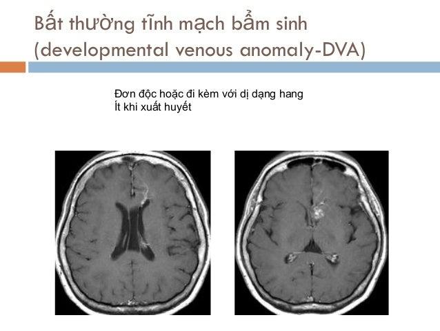 Đơn độc hoặc đi kèm với dị dạng hang Ít khi xuất huyết Bất thường tĩnh mạch bẩm sinh (developmental venous anomaly-DVA)