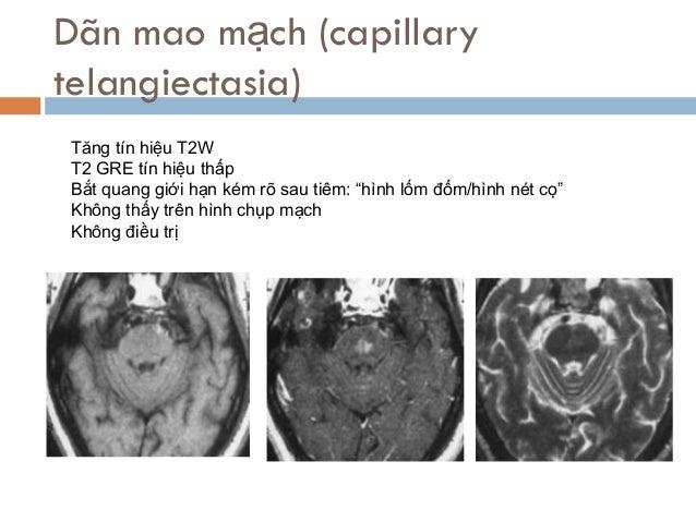 """Dãn mao mạch (capillary telangiectasia) Tăng tín hiệu T2W T2 GRE tín hiệu thấp Bắt quang giới hạn kém rõ sau tiêm: """"hình l..."""