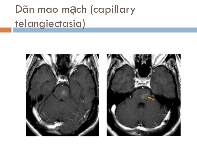 Dãn mao mạch (capillary telangiectasia)