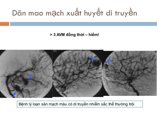 Dãn mao mạch xuất huyết di truyền > 3 AVM đồng thời – hiếm! Bệnh lý loạn sản mạch máu có di truyền nhiễm sắc thể thường tr...