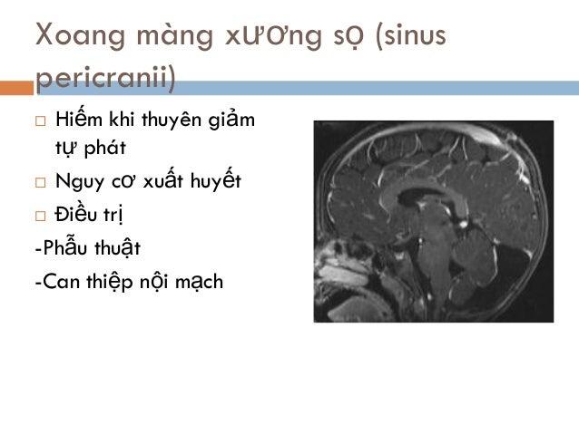  Hiếm khi thuyên giảm tự phát  Nguy cơ xuất huyết  Điều trị -Phẫu thuật -Can thiệp nội mạch Xoang màng xương sọ (sinus ...