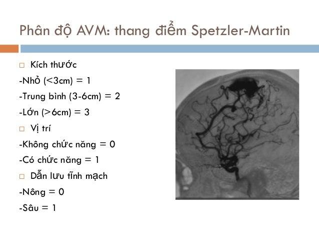 Phân độ AVM: thang điểm Spetzler-Martin  Kích thước -Nhỏ (<3cm) = 1 -Trung bình (3-6cm) = 2 -Lớn (>6cm) = 3  Vị trí -Khô...