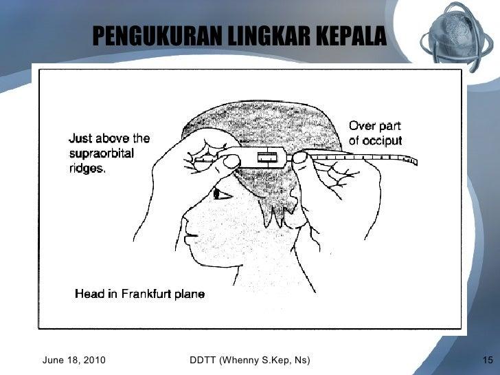 Perhatikan Lingkar Kepala dan Ubun-Ubun Anak