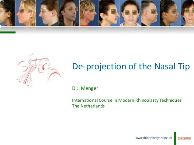 De-projection of the Nasal TipD.J. MengerInternational Course in Modern Rhinoplasty TechniquesThe Netherlands             ...