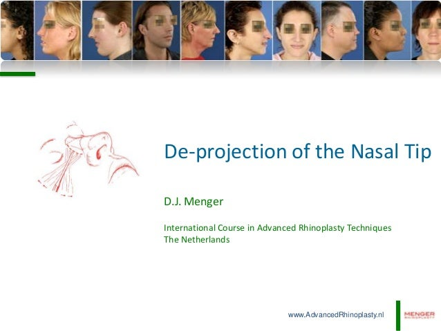 De-projection of the Nasal Tip D.J. Menger International Course in Advanced Rhinoplasty Techniques The Netherlands  www.Ad...
