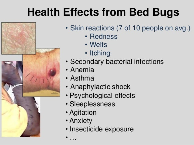 Dealing W Bed Bugs