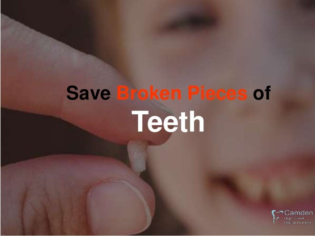 Place Knocked Out Teeth back in your mouth if possible