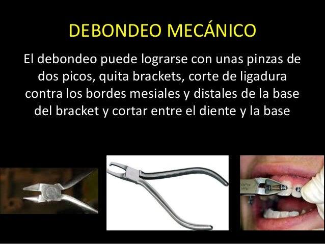 DEBONDEO MECÁNICOEl debondeo puede lograrse con unas pinzas dedos picos, quita brackets, corte de ligaduracontra los borde...