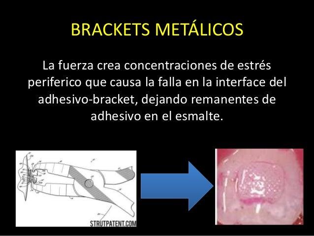 La fuerza crea concentraciones de estrésperiferico que causa la falla en la interface deladhesivo-bracket, dejando remanen...