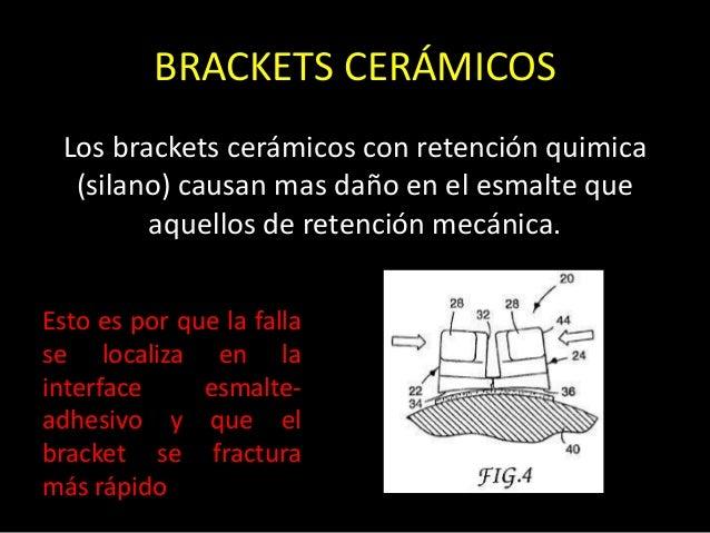 BRACKETS CERÁMICOSLos brackets cerámicos con retención quimica(silano) causan mas daño en el esmalte queaquellos de retenc...
